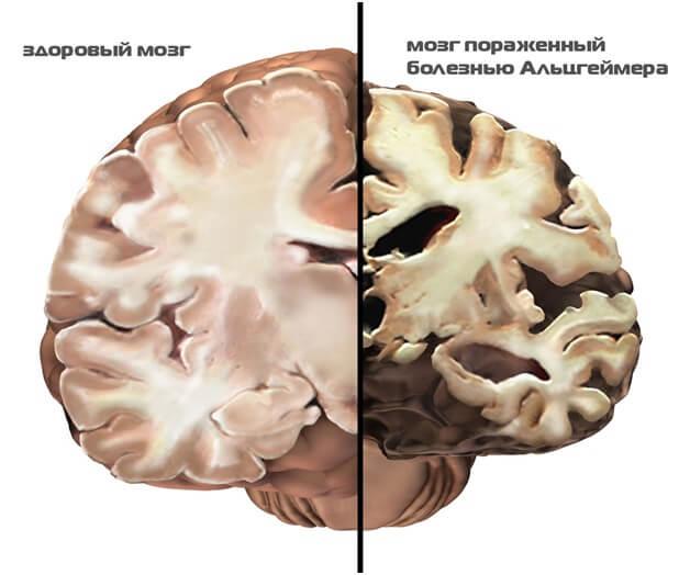 Болезнь Альгеймера