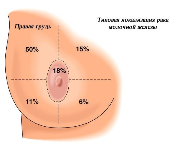 локализация зон груди