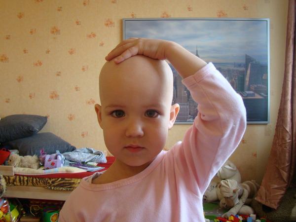 Гнездная алопеция у детей причины и лечение
