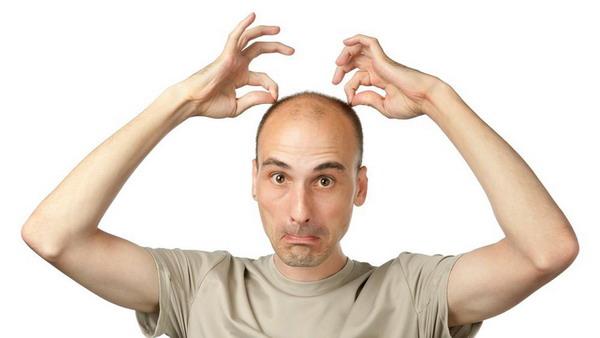 Средство от облысения, выпадения волос у мужчин: лекарство в аптеке