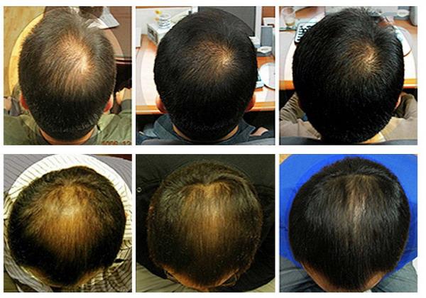 Салициловая мазь при выпадении волос