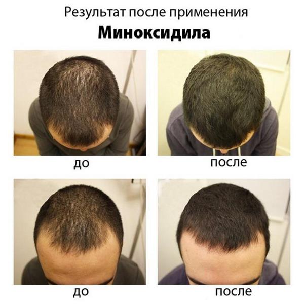 лечение миноксидилом