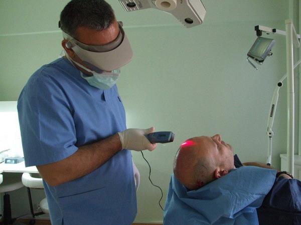 алопеция у мужчин лечение лазером
