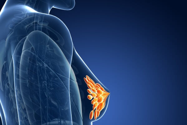 уплотнения в молочной железе