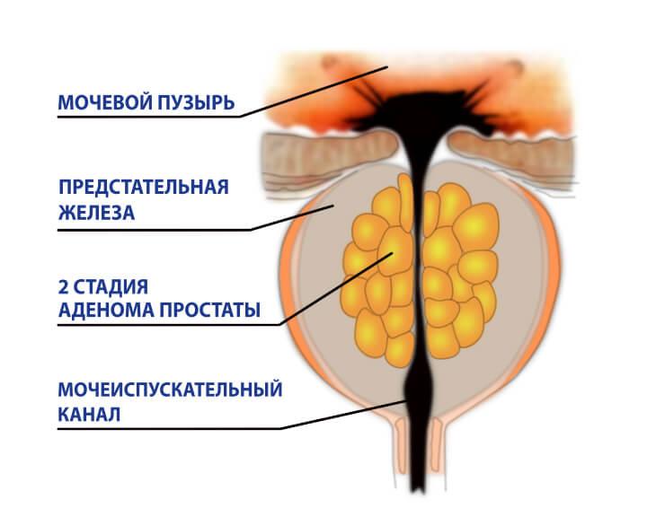 Аденома простаты на второй стадии
