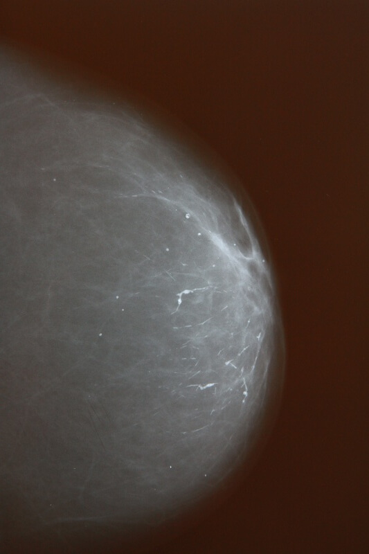 диагностика жировой инволюции молочных желез