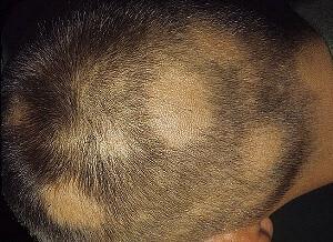 Алопеция у мужчин на голове лечение