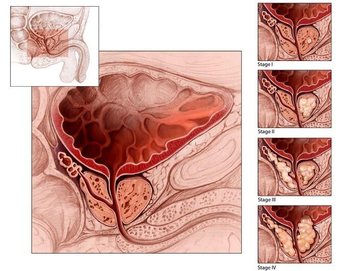 Аденома простаты лечение простатита аденомы лечение