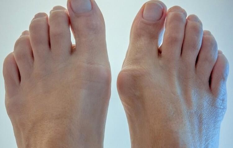выпирающие косточки на ногах