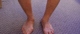 варусная деформация стопы у взрослых