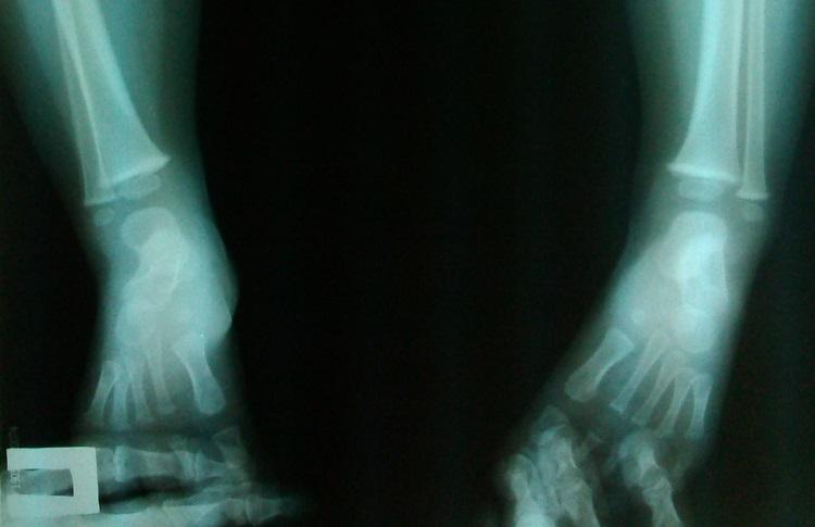 рентген варусной установки стоп