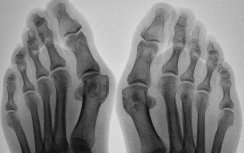 рентген суставов больших пальцев ног