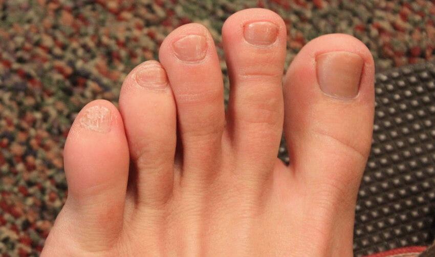 опухший палец на ноге