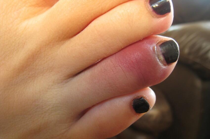 палец на ноге покраснел и болит