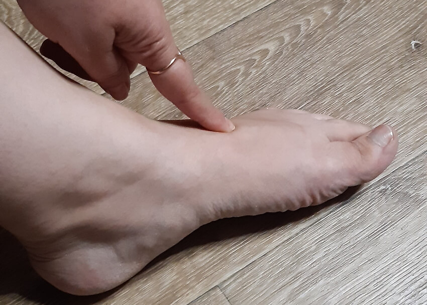 болит свод стопы