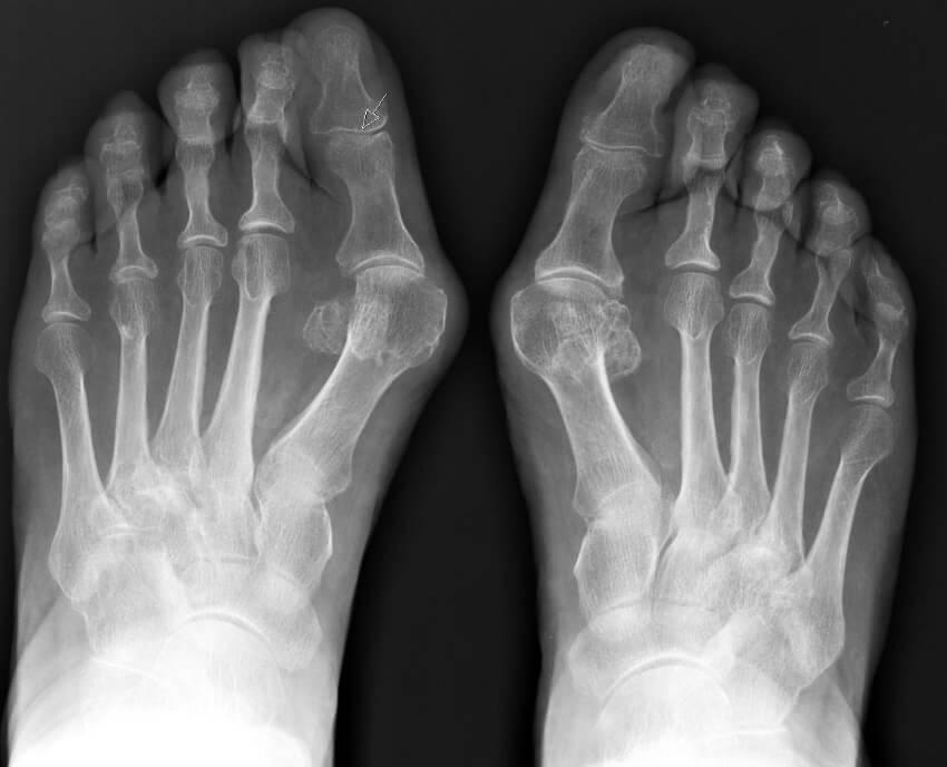 рентген халюс вальгус