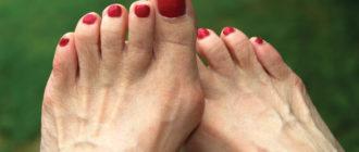 шишка на ноге на большом пальце