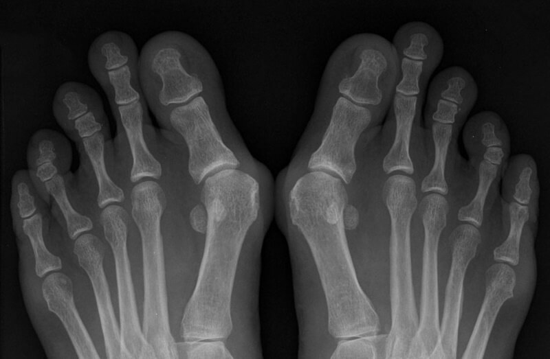 шишки возле больших пальцев ног