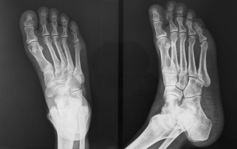 косточка на мизинце ноги рентген