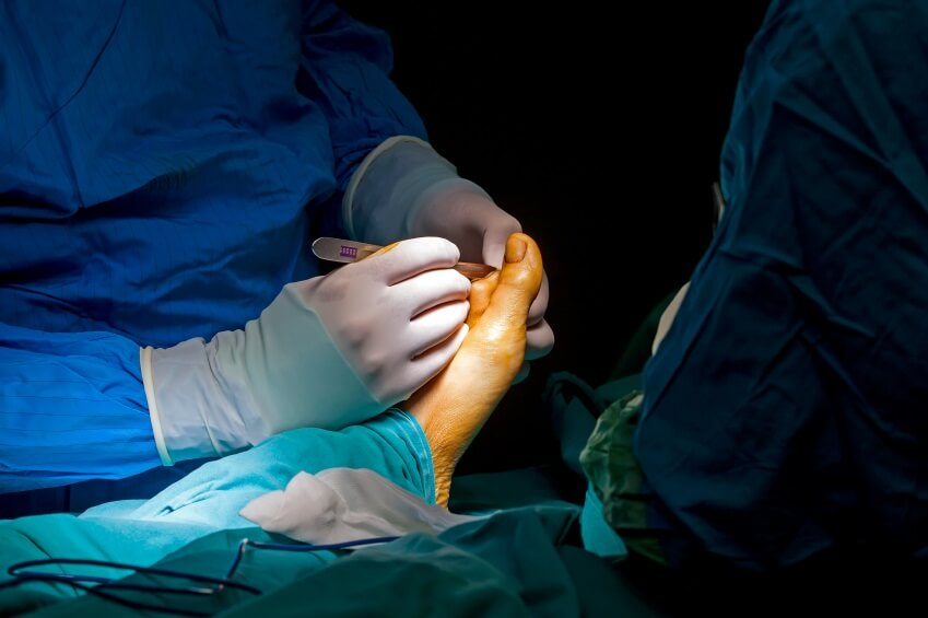 молоткообразный палец операция