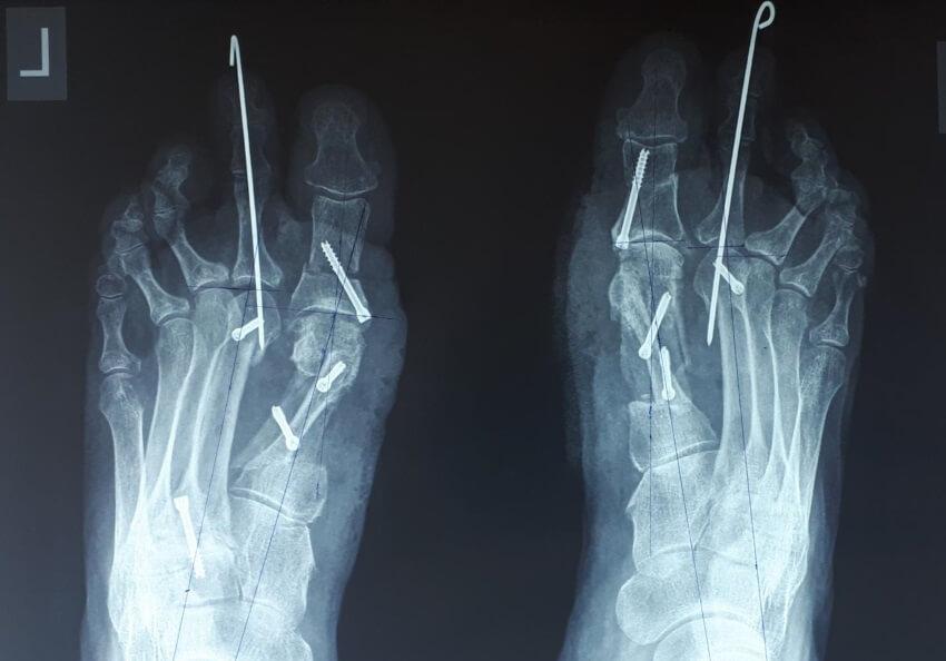 остеотомия пальцев ног