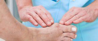 операция на косточку на ноге