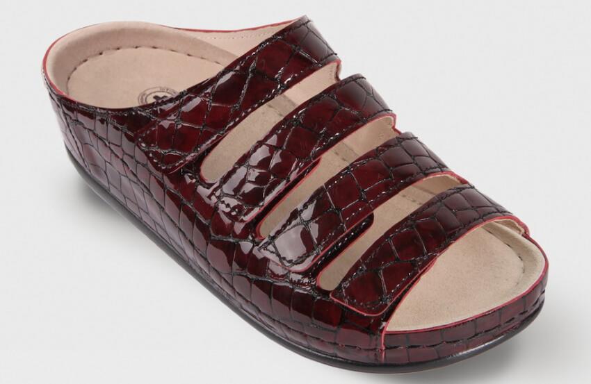 ортопедическая обувь для женщин при вальгусной деформации
