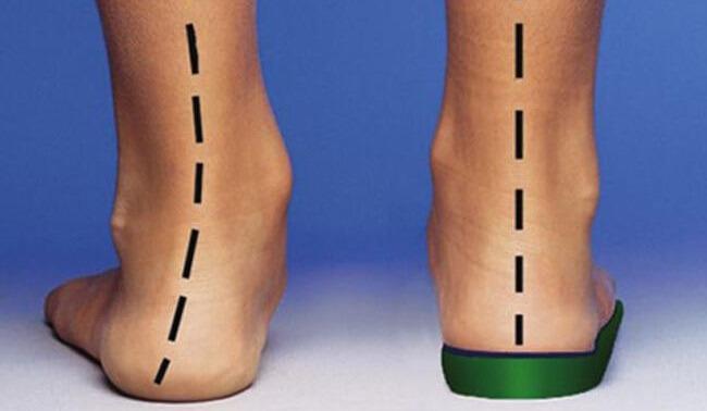 Лечение вальгусной деформации стопы различной постановки у взрослых