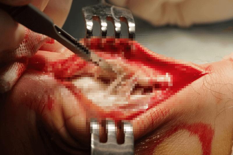 болезнь хаглунда операция