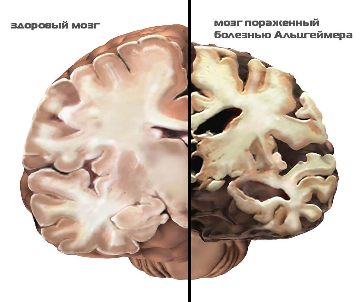болезнь альцгеймера диагностика