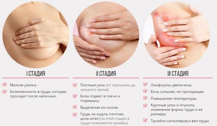 симптомы мастопатии молочной железы