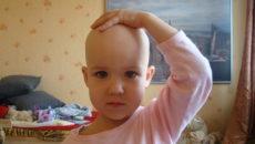 алопеция у детей лечение