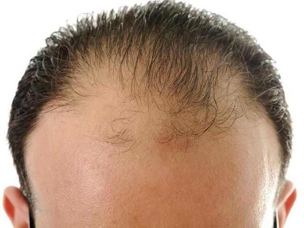Маска для сухих волос с лимона
