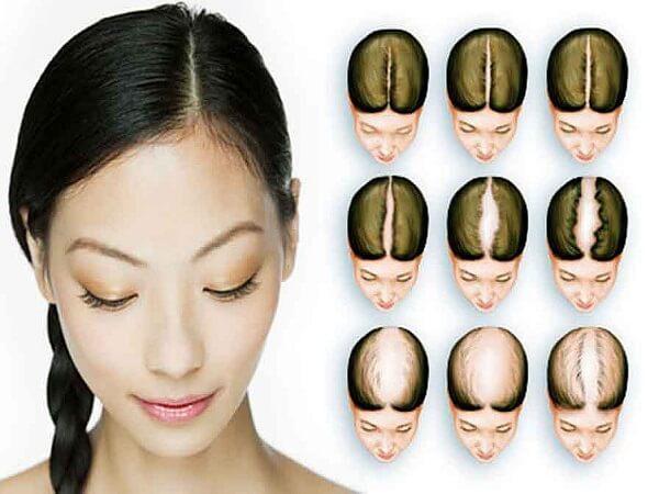 Какие витамины необходимы нашим волосам