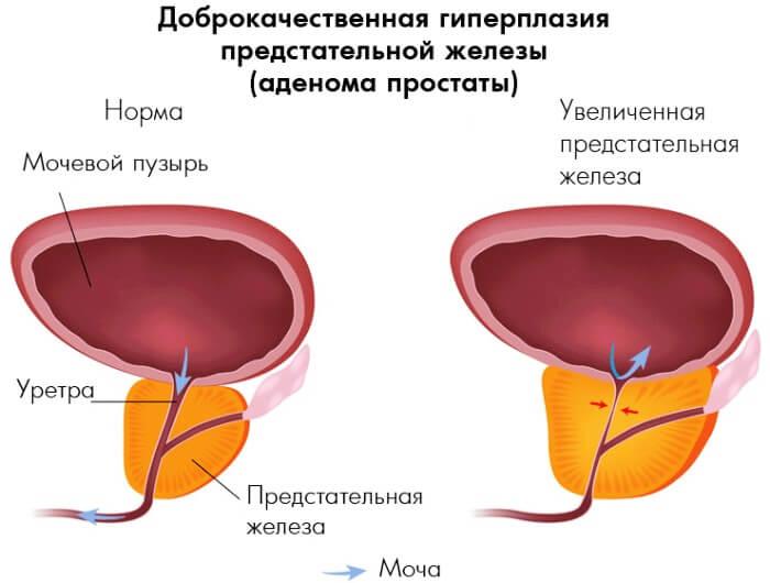 объем предстательной железы при аденоме