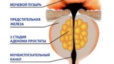стадии аденомы простаты